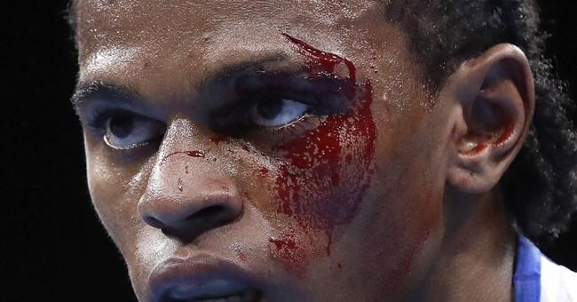 Blood and guts: Olympic boxers dealing with facial cuts