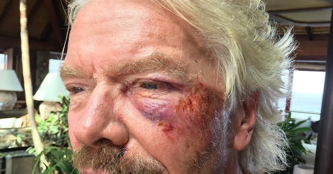 Billionaire Richard Branson survives bike crash