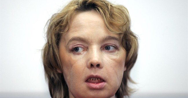 Frenchwoman who got world's 1st face transplant dies at 49
