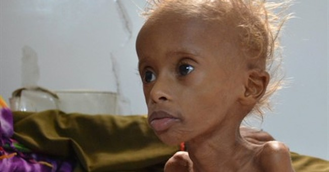 Ravaged by conflict, Yemen's coast faces rising malnutrition