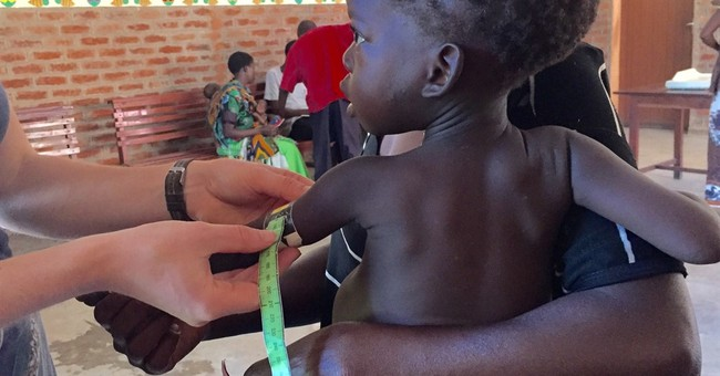 Study: Right gut bacteria may protect against malnutrition