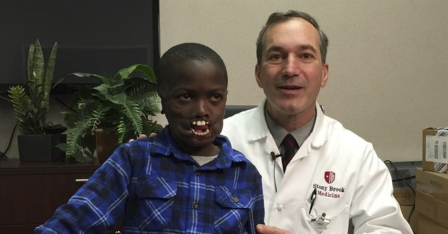 African boy mauled by chimps to undergo facial surgery in NY
