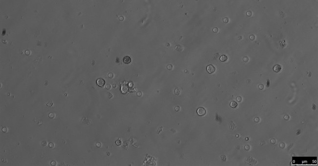 Mouse sperm made in lab; technique may help with infertility