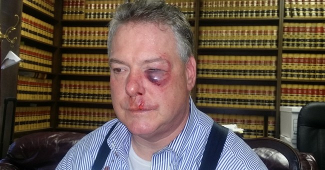 Defense lawyer, investigator brawl in California courthouse