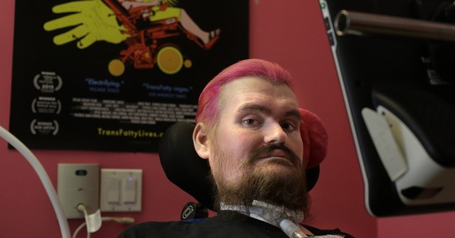 Using just his eyes, filmmaker captures his fight with ALS