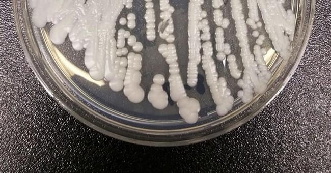 'Superbug' fungus new menace in US hospitals, mostly NY, NJ