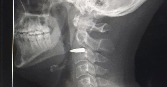 Australian TV journalist hit by bullet in Philippines city