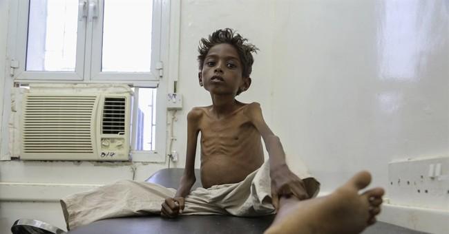 Yemen's children starve as war drags on