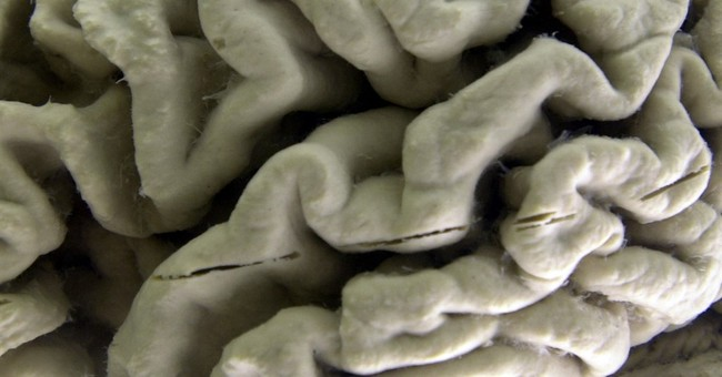 Lifestyle changes to stave off Alzheimer's? Hints, no proof