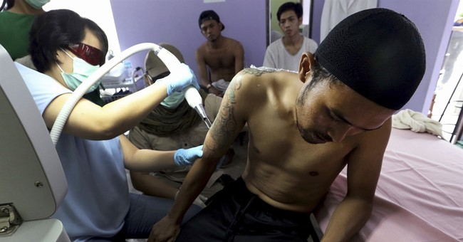 Indonesia clinic gives relief to Muslims with tattoo regrets