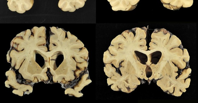 Science Says: How repeated head blows affect the brain
