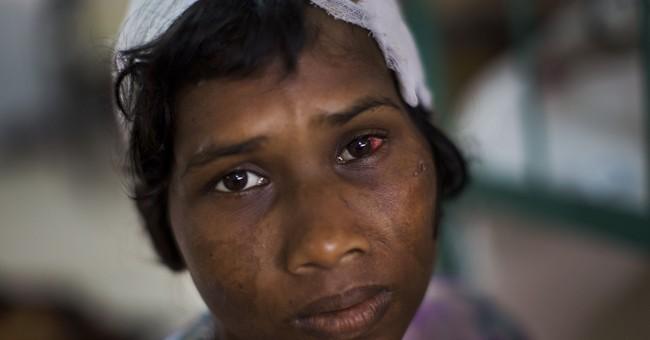 Bangladesh hospital struggles to cope with Rohingya wounds