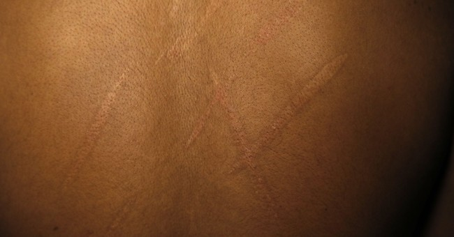 Men report rape, branding and torture by Sri Lankan forces