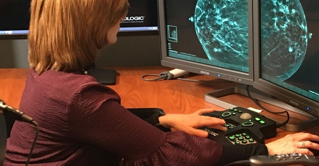 Are 3-D mammograms really better? US puts scans to the test