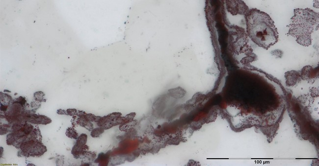 Tiny tubes in Canadian rock may be oldest known fossils