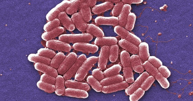 Antibiotics Unearthed to Kill Superbugs